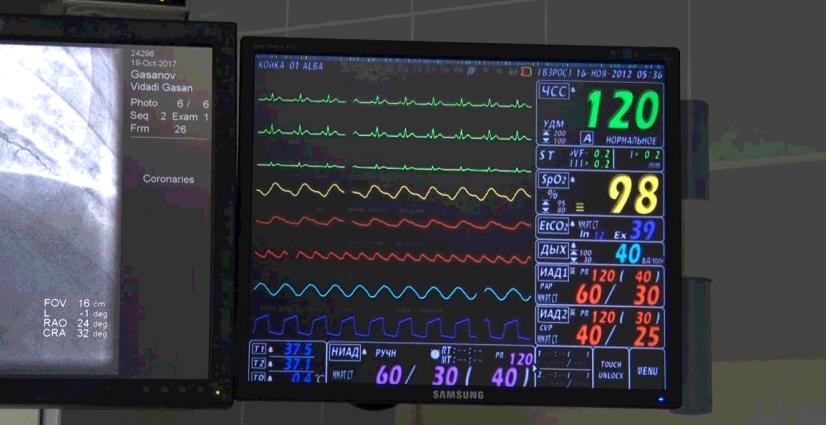 В Житомирській обласній лікарні відкрили реперфузійне відділення