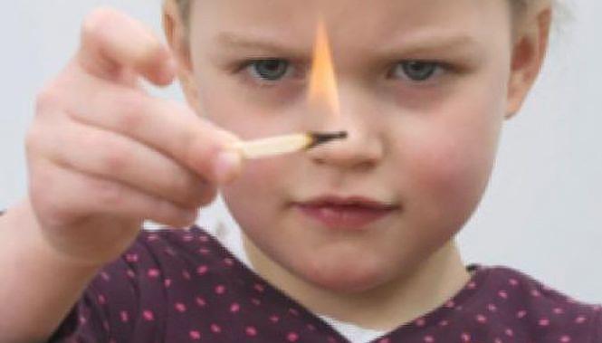 Численні опіки – наслідок небезпечних ігор підлітка