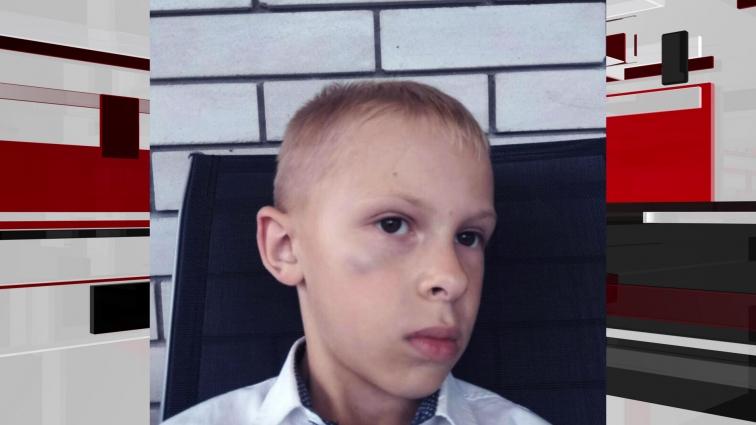 У 8-річного хлопчика струс мозку від побоїв однолітків