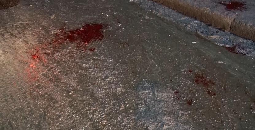 У Житомирі поліцейського побили на дорозі